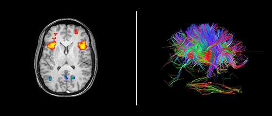 The image on the left shows a rudimentary scan of the brain done using fMRI; the image on the right offers a more advanced look at modern brain imaging capabilities